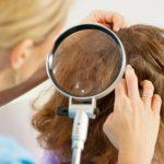 Как вывести вшей и гнид уксусом